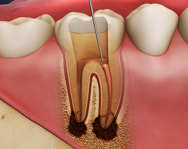 Ordinacija Dentalne medicine Dražen Kinkela | Rijeka | Hrvatska - endodoncija