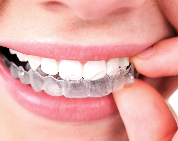 Ordinacija Dentalne medicine Dražen Kinkela | Rijeka | Hrvatska - estetska stomatologija
