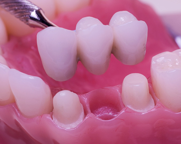 Ordinacija Dentalne medicine Dražen Kinkela | Rijeka | Hrvatska - fiksna protetika