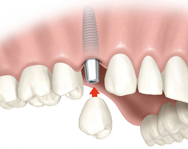 Ordinacija Dentalne medicine Dražen Kinkela | Rijeka | Hrvatska - implantologija