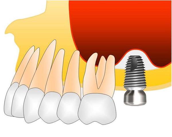Ordinacija Dentalne medicine Dražen Kinkela | Rijeka | Hrvatska - oralna kirurgija