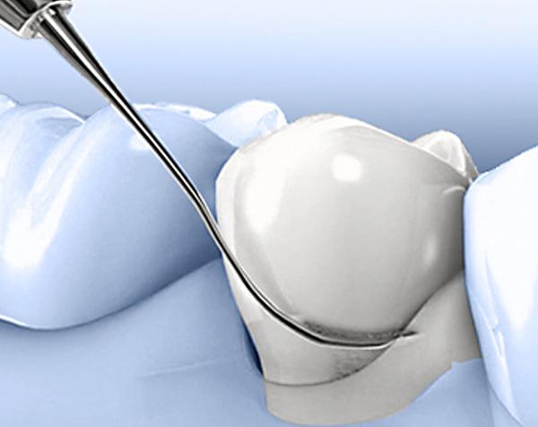 Ordinacija Dentalne medicine Dražen Kinkela | Rijeka | Hrvatska - parodontologija
